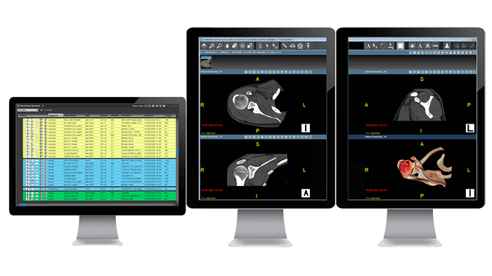 Computer monitors showing x-ray images